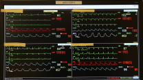 Patients' vital signs on a monitor.
