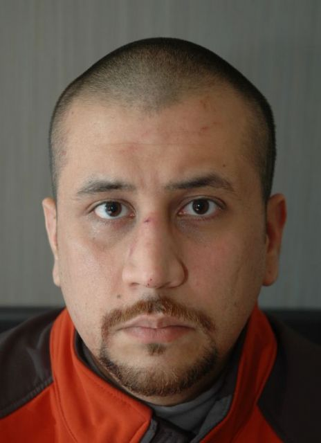 Photo of George Zimmerman after the shooting: State of Florida