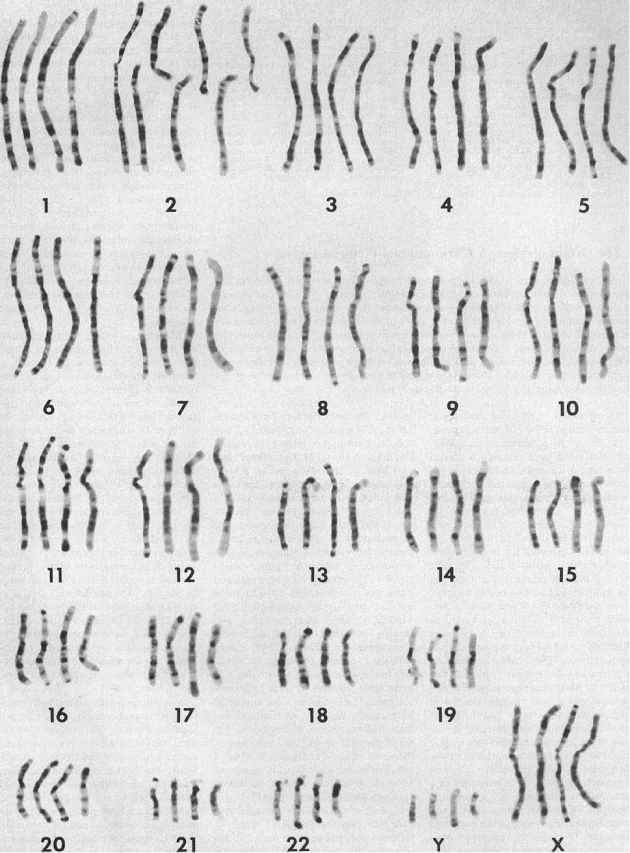 Side-by-side comparison of the chromosomes of humans, chimpanzees, gorillas, and orangutans (from left to right for each chromosome)